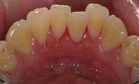下顎前歯.jpg