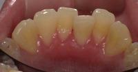 下顎前歯1.jpg