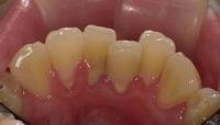 下顎前歯b